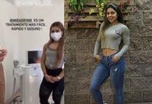 Influencer mexicana pierde la vida en tratamiento para evitar sudoración excesiva